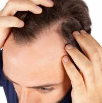 genetic hair loss (german spoken)