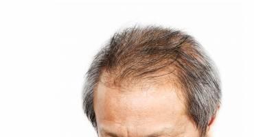 Haaruitval en haargroeiprobleem