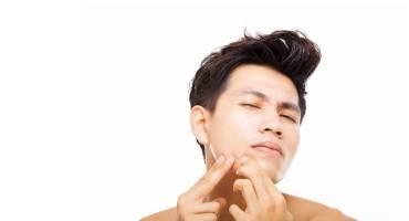 Vette, onzuivere acne huid